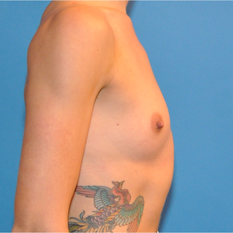 Breast Augmentation before 3207111