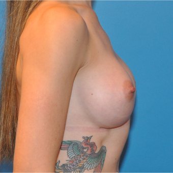 Breast Augmentation after 3207111