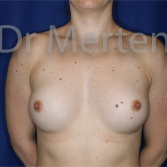 18-24 year old woman treated with Breast Augmentation after 3552658