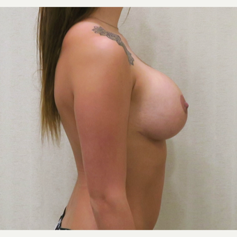 18-24 year old woman treated with Breast Lift with Implants after 3495360