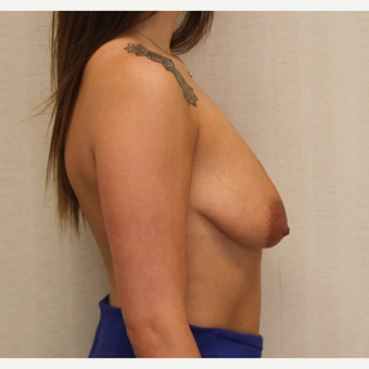 18-24 year old woman treated with Breast Lift with Implants before 3495360