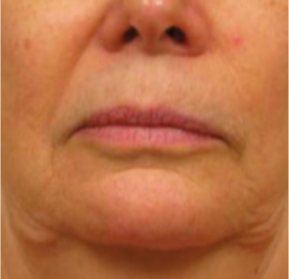 55-64 year old woman treated with Skin Rejuvenation before 2878615