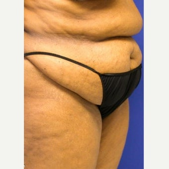 55-64 year old woman treated with Tummy Tuck before 1863432