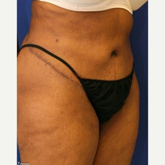 55-64 year old woman treated with Tummy Tuck after 1863432