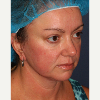 35-44 year Old Woman Treated for Facial Redness with IPL after 3346040
