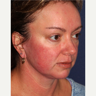 35-44 year Old Woman Treated for Facial Redness with IPL before 3346040