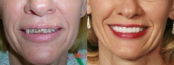 Porcelain Veneers  before 1232803