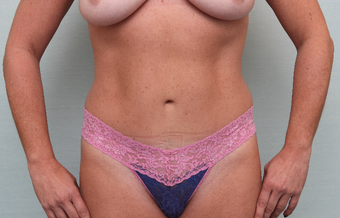 35-44 year old woman treated with Tummy Tuck after 3768045