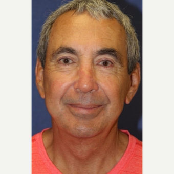 67 year old man with a Facelift after 3104434