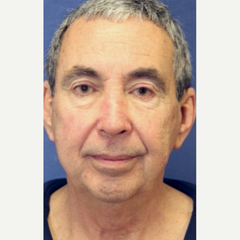 67 year old man with a Facelift before 3104434