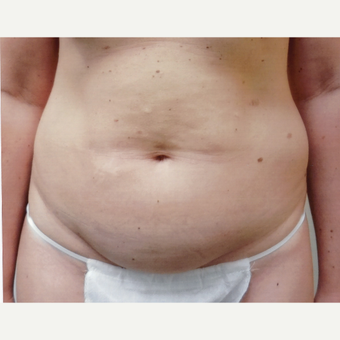 35-44 year old woman treated with Tummy Tuck before 3458258