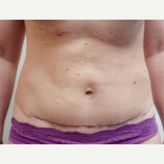 35-44 year old woman treated with Tummy Tuck after 3458258