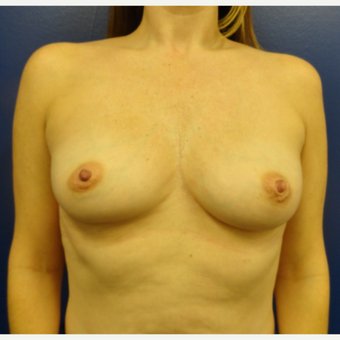 35-44 year old woman treated with Breast Augmentation before 3225106