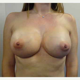 35-44 year old woman treated with Breast Augmentation after 3225106