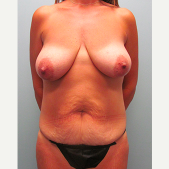 44 year old woman treated with Mommy Makeover before 3468549