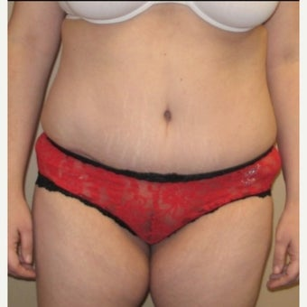 35-44 year old woman treated with Tummy Tuck after 1661548