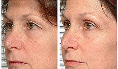 Thermage for eyelids. before 1249295