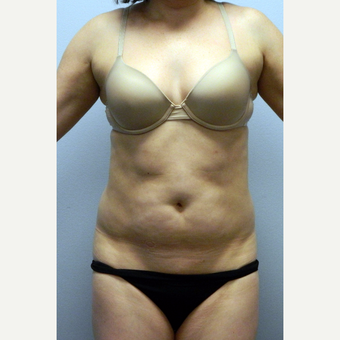 35-44 year old woman treated with Liposuction of the abdomen and flanks before 3135598