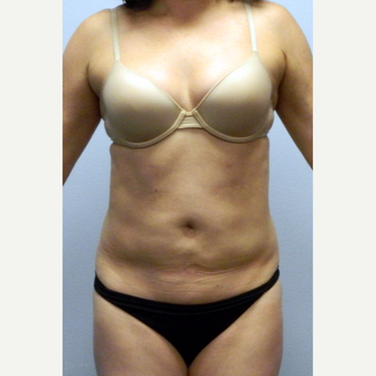 35-44 year old woman treated with Liposuction of the abdomen and flanks after 3135598
