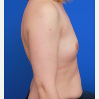 32- year old woman treated with Breast Augmentation before 3004666