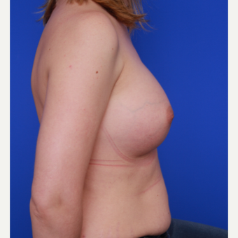 32- year old woman treated with Breast Augmentation after 3004666