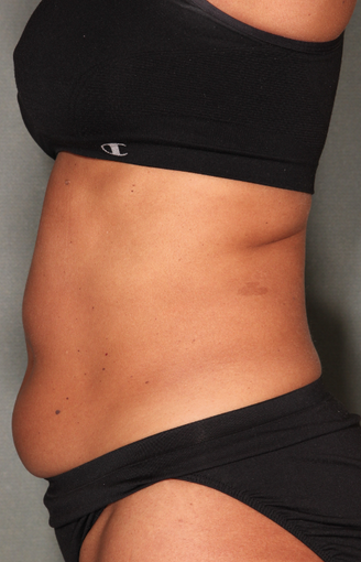 SmartLipo™  before 529473