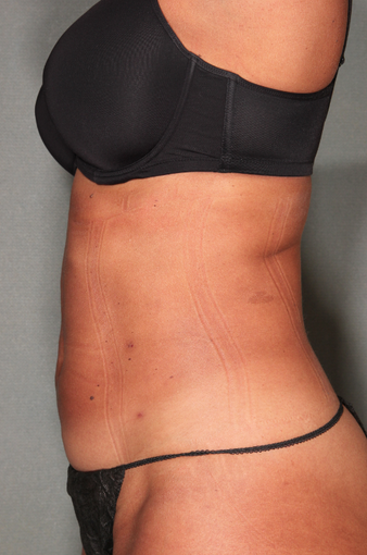 SmartLipo™  after 529473