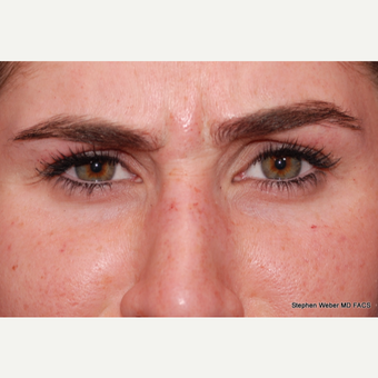25-34 year old woman treated with Botox before 3624475