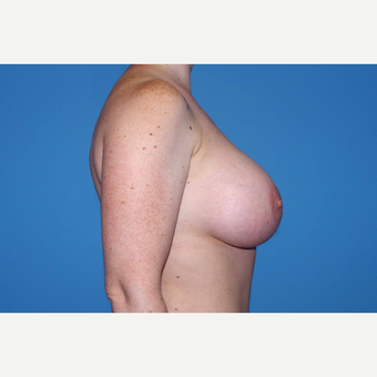 25-34 year old woman treated with Breast Augmentation after 3280666