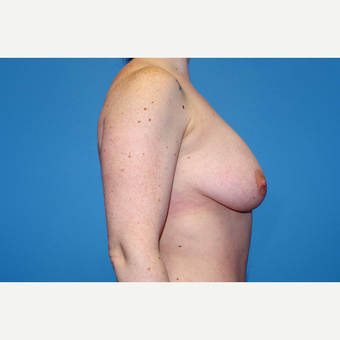 25-34 year old woman treated with Breast Augmentation before 3280666