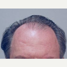 Hair Transplant before 3241360