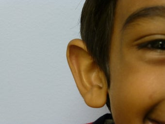 Childs otoplasty 877671