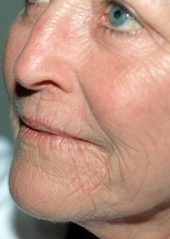 Laser Resurfacing before 1072048