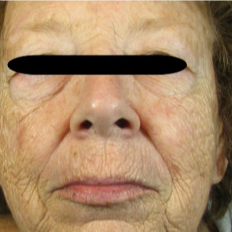 65-74 year old woman treated with Fraxel Laser before 2976177
