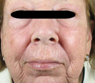 65-74 year old woman treated with Fraxel Laser after 2976177
