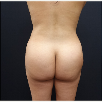 25-34 year old woman treated with Liposculpture before 3286447
