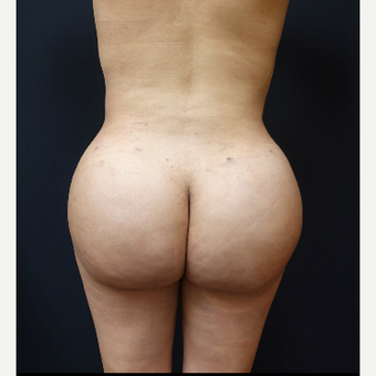 25-34 year old woman treated with Liposculpture after 3286447