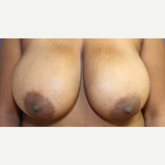16 year old woman with a Breast Reduction before 3522684