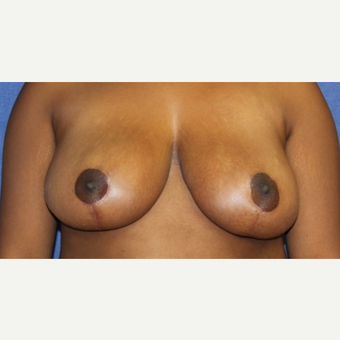 16 year old woman with a Breast Reduction after 3522684