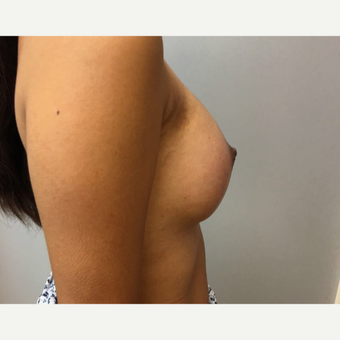 35-44 year old woman treated with Breast Augmentation after 3725997