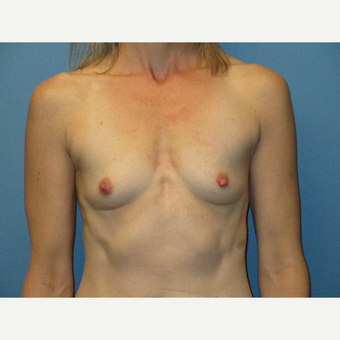 35-44 year old woman treated with Breast Implants before 3725819