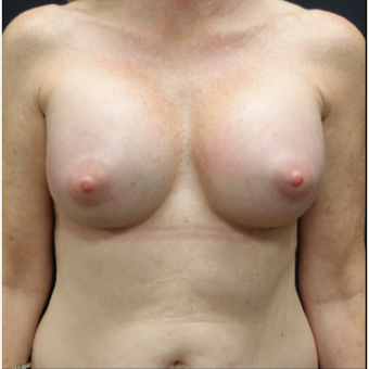 35-44 year old woman treated with Natrelle Breast Implants after 3280325