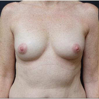 35-44 year old woman treated with Natrelle Breast Implants before 3280325