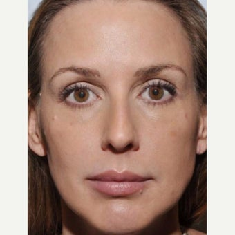 35-44 year old woman treated with Sculptra after 1956228
