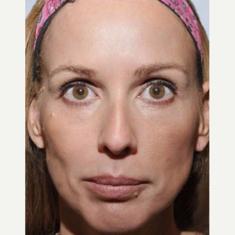 35-44 year old woman treated with Sculptra before 1956228