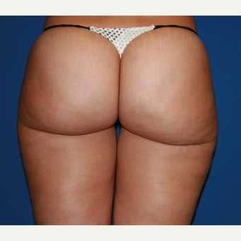 25-34 year old woman treated with Liposuction after 2675001
