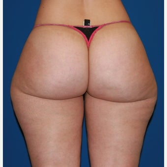 25-34 year old woman treated with Liposuction before 2675001