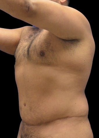 35-44 year old man treated with Liposuction Revision after 3220606