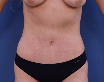 25-34 year old woman treated with Tummy Tuck after 2048102