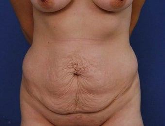 25-34 year old woman treated with Tummy Tuck before 2048102